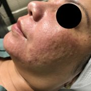 MicroNeedling during treatment